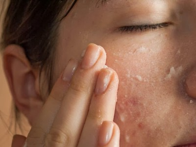 550px-Get-Rid-of-Large-Pores-and-Blemishes-Step-3-Version-2