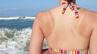 header_image_xhome-remedies-sunburn-main